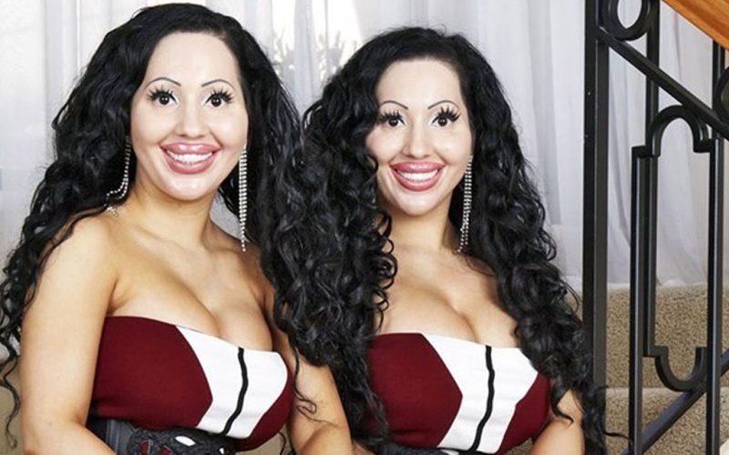 Что заставило этих близняшек сделать столько пластических операций, и как они выглядели раньше?