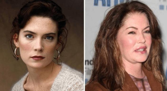 Актрисы, которые испортили себя пластикой