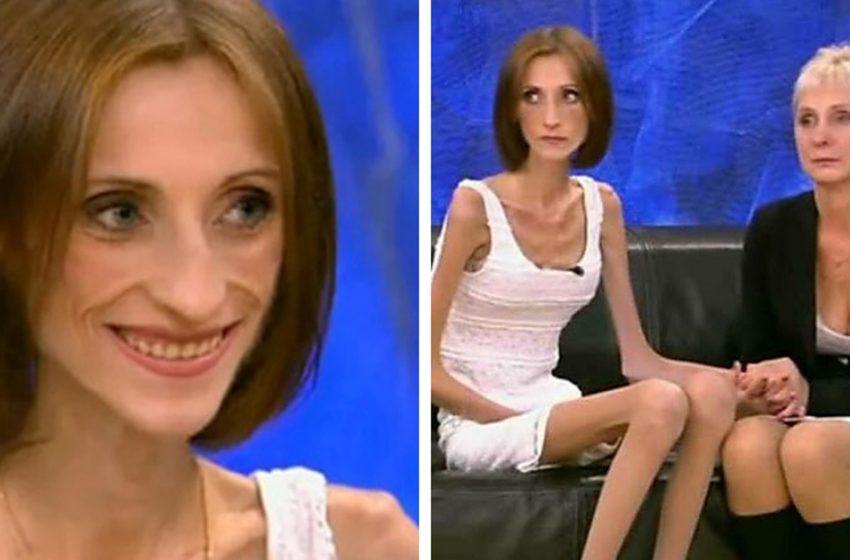 В 19 лет — 26 kг, как изменилась девушка спустя 5 лет после «Пусть говорят»