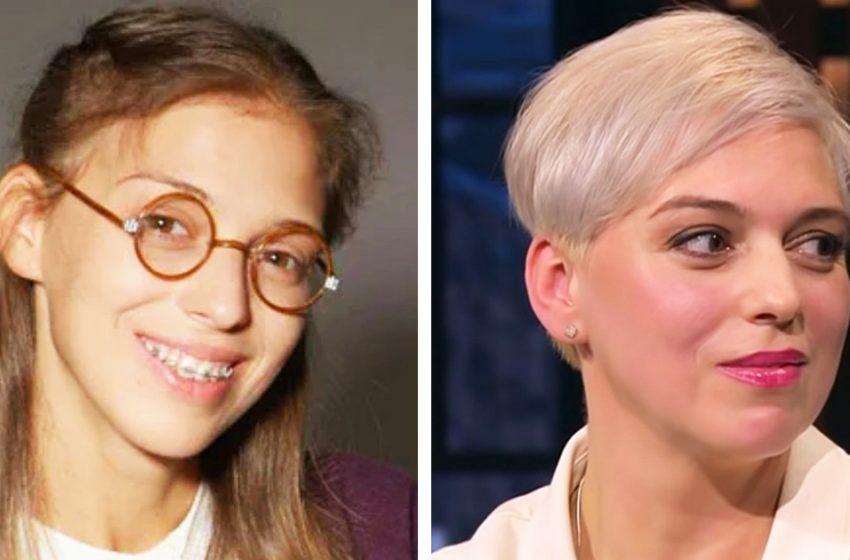 «До и после»: как из дурнушки Нелли Уварова стала красавицей?